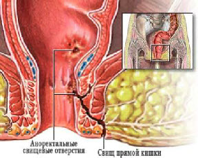 Anorectal abscess